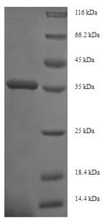 SDS-PAGE- Recombinant protein Human ITGA2