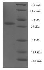 SDS-PAGE- Recombinant protein Human ITGA2B