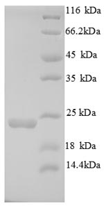 SDS-PAGE- Recombinant protein Mouse Itgal