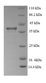SDS-PAGE- Recombinant protein Human PCLAF