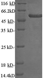 SDS-PAGE- Recombinant protein Human KRT4