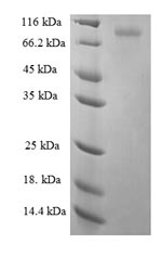 SDS-PAGE- Recombinant protein Human KRT6A