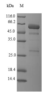 SDS-PAGE- Recombinant protein Human LGALS8