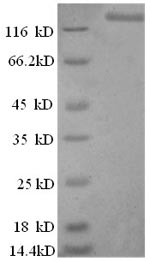 SDS-PAGE- Recombinant protein Human LIG1
