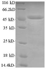 SDS-PAGE- Recombinant protein Human LIPA