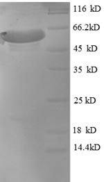 SDS-PAGE- Recombinant protein Macaca MAPT