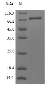 SDS-PAGE- Recombinant protein Human METAP2