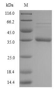SDS-PAGE- Recombinant protein Staphylococcus acpP