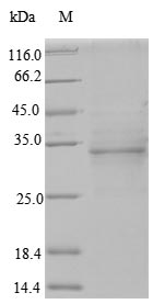 SDS-PAGE- Recombinant protein Human ODAM