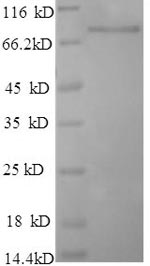 SDS-PAGE - Recombinant Human PARN