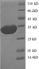 SDS-PAGE- Recombinant protein Escherichia def