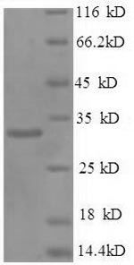 SDS-PAGE- Recombinant protein Human PHB