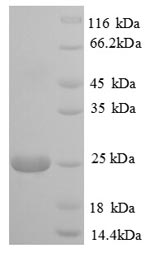 SDS-PAGE- Recombinant protein Bovine PIGR