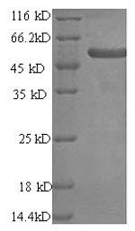 SDS-PAGE- Recombinant protein Human PRAME