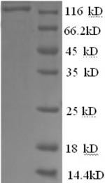 SDS-PAGE- Recombinant protein Human PYGL
