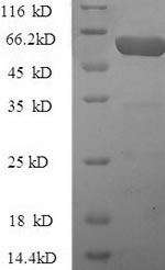SDS-PAGE- Recombinant protein Human PZP