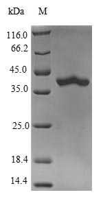 SDS-PAGE- Recombinant protein Mouse Rab10
