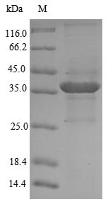 SDS-PAGE- Recombinant protein Mouse Qpct