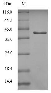 SDS-PAGE- Recombinant protein Human RAB5C