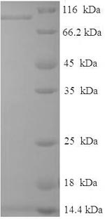 SDS-PAGE- Recombinant protein Human RAF1