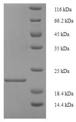 SDS-PAGE- Recombinant protein Rat Reg3g