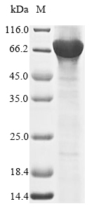 SDS-PAGE- Recombinant protein Human RORC