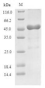SDS-PAGE- Recombinant protein Human RPLP0