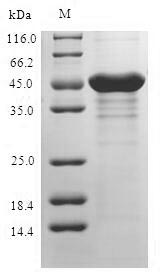 SDS-PAGE- Recombinant protein Human RS1