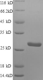 SDS-PAGE- Recombinant protein Human S100A4