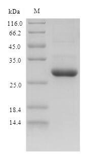 SDS-PAGE- Recombinant protein Mouse S100a9