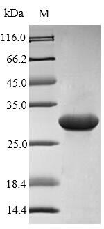 SDS-PAGE- Recombinant protein Rat S100a9