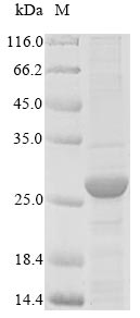 SDS-PAGE- Recombinant protein Cat SAA1