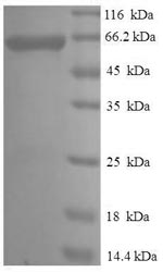 SDS-PAGE- Recombinant protein Rat Serpinb2
