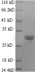 SDS-PAGE- Recombinant protein Bovine SFTPC