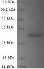 SDS-PAGE- Recombinant protein Human SNCG