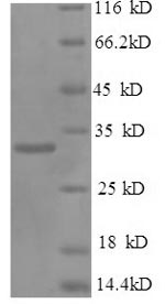 SDS-PAGE- Recombinant protein Mouse Spp1