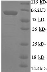 SDS-PAGE- Recombinant protein Human SYN1