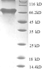 SDS-PAGE- Recombinant protein Human TARDBP