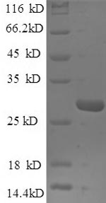 SDS-PAGE- Recombinant protein Saccharomyces SPT15