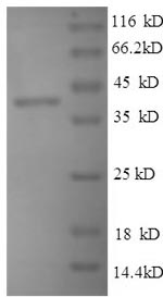 SDS-PAGE- Recombinant protein Mouse Thbs1