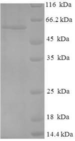 SDS-PAGE- Recombinant protein Human TP53