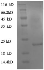 SDS-PAGE- Recombinant protein Mouse Tpt1