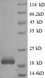 SDS-PAGE- Recombinant protein Human TRAC