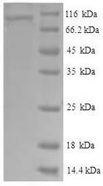 SDS-PAGE- Recombinant protein Human VCAM1