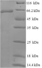 SDS-PAGE- Recombinant protein Human WT1