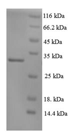 SDS-PAGE- Recombinant protein Human XPC