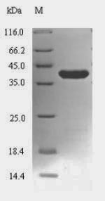 SDS-PAGE- Recombinant protein Mycoplasma lon