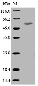 SDS-PAGE- Recombinant protein Mycoplasma p46