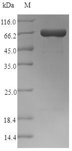 SDS-PAGE- Recombinant protein Clostridium pfo