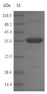 SDS-PAGE- Recombinant protein Chlamydia omcB